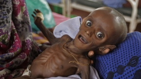 starving baby