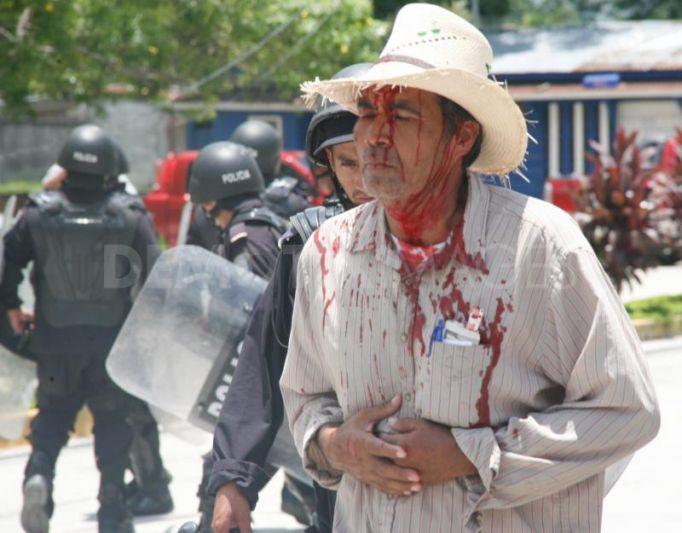 1250504748-police-brutality-in-choloman-honduras122527_122527